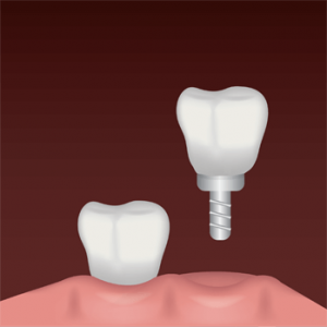 tooth implant benefits