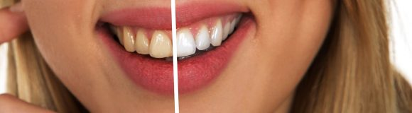 Deep Cleaning Teeth an Excellent Way to Maintain your Teeth