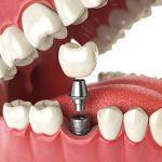 Medication For Dental Implant Recovery