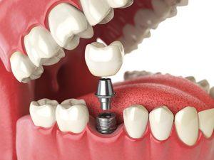 dental implant medication