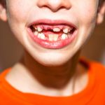Loose Tooth Remedy Best Solution