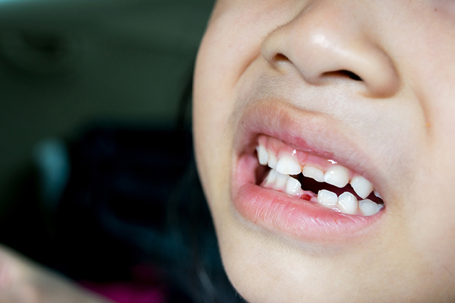 teeth falling