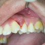 Gum Boil Causes, Types and Management