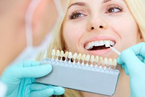What Is Crown Lengthening?
