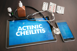 Actinic Cheilitis Treatment