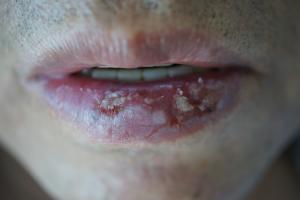 Actinic Cheilitis Treatment