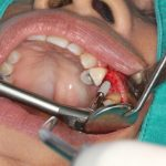 Signs of Dental Implant Failure