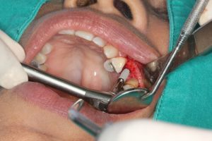 Bleeding is one of the Signs of tooth Implant Failure after the placement