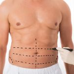 Everything To Know About Male Tummy Tuck