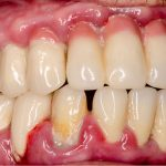 Aggressive Periodontitis Treatment