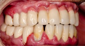 aggressive periodontitis treatment