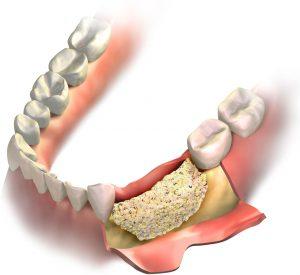 dental bone graft recovery