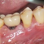 White Gums Around Teeth: Is It A Sign Of Infection?